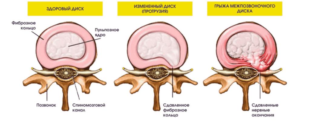 Лечение протрузий в Полтаве