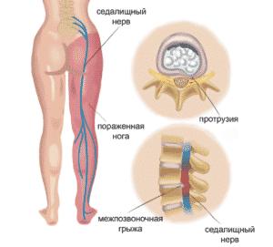 Лечение ишиаса в Полтаве