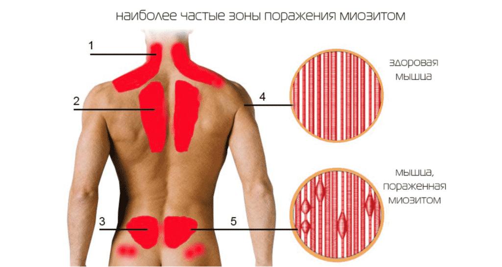 Лечение миозита в Полтаве