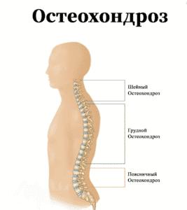 Лечение остеохондроза в Полтаве