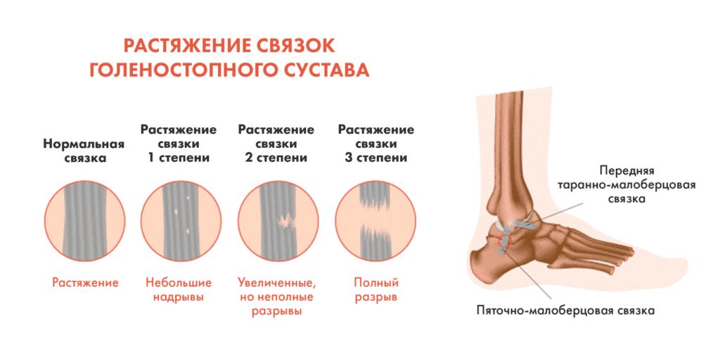 Лечение ушибов в Полтаве