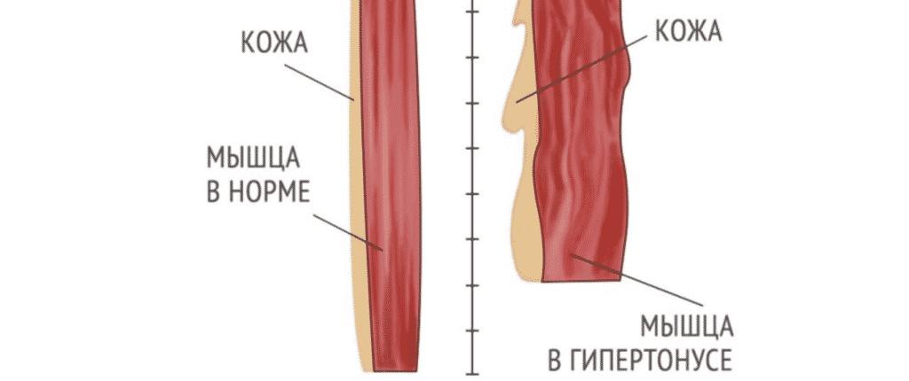 Лечение гипертонуса в Полтаве