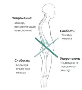 Лечение гипотонуса в Полтаве
