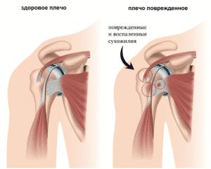 Лечение боли в плече в Полтаве