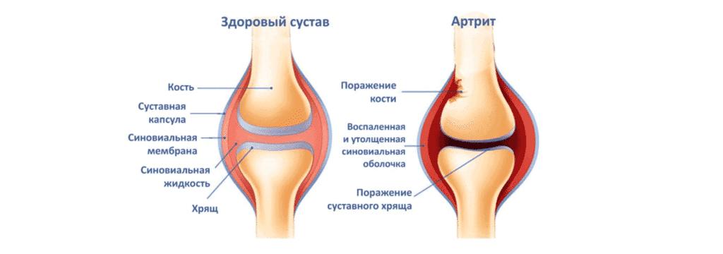 Лечение боли в колене в Полтаве