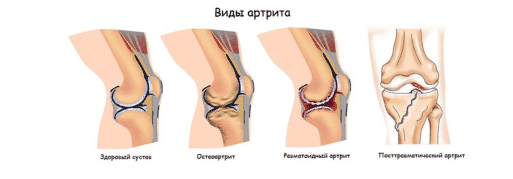Лечение артрита в Полтаве
