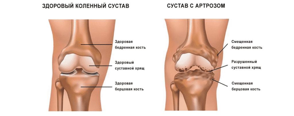 Лечение артроза в Полтаве