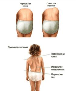 Лечение сколиоза у детей в Полтаве