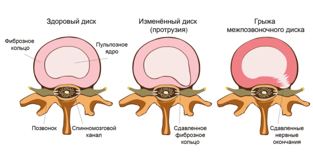 Лечение межпозвонковой грыжи в Полтаве